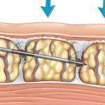 subcision